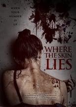 Where the Skin Lies