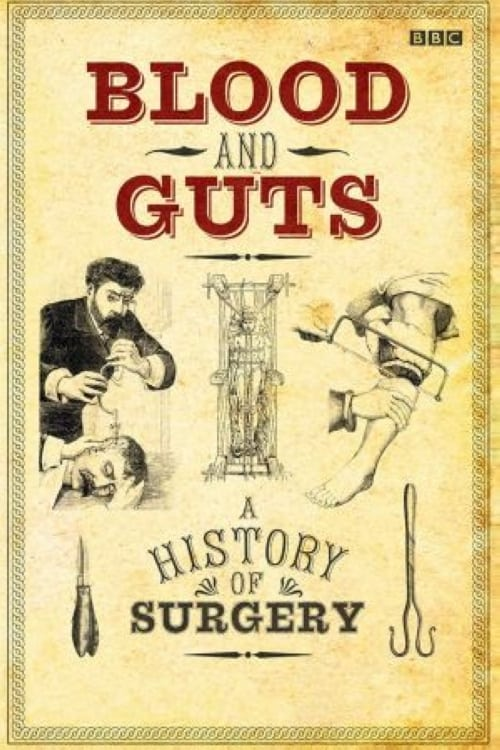 Blood and Guts: A History of Surgery TV Shows About Medicine