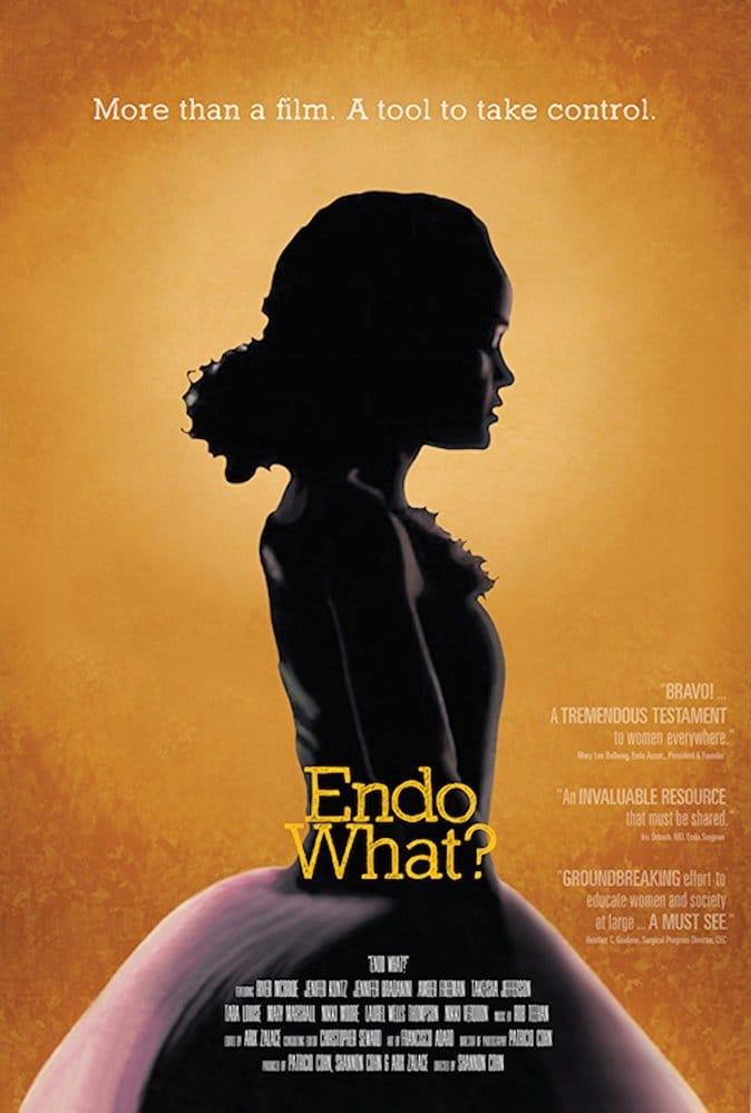 Ver Endo What? Online HD Español (2016)