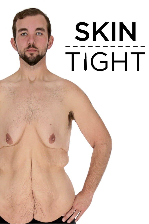 My 600-lb Life: Skin Tight (2018)