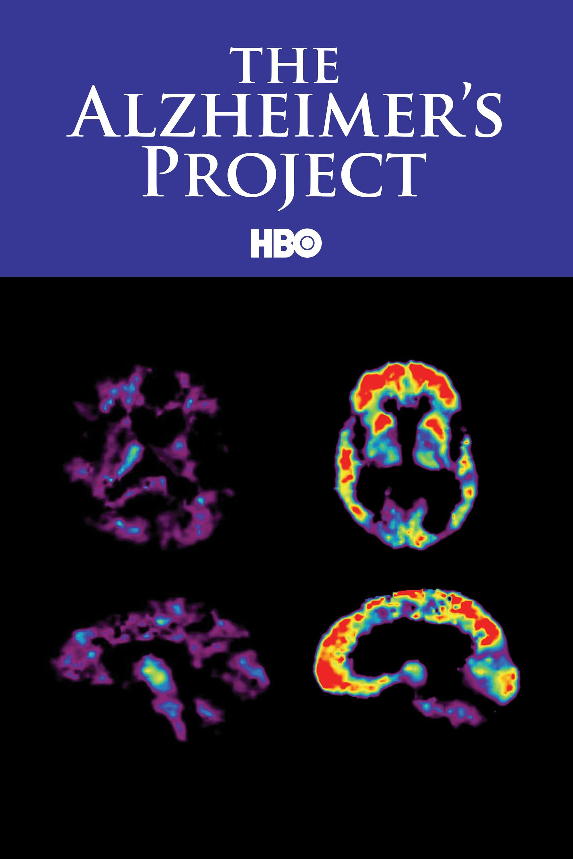 The Alzheimer's Project (2009)