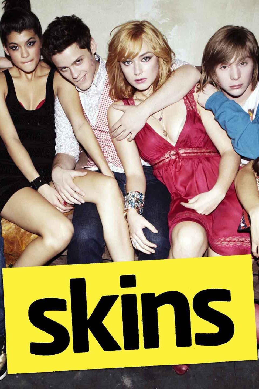 Skins (US)