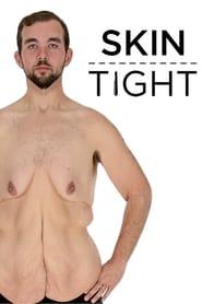 My 600-lb Life: Skin Tight