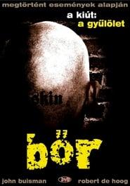 Skin – Hass war sein Ausweg (2008)