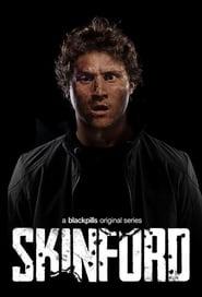 serie Skinford streaming