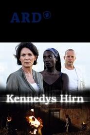 Kennedys Hirn