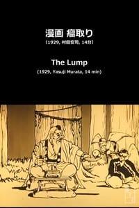 瘤取り (1929)