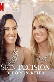 Skin Decision: Before and After 1ª Temporada Completa
