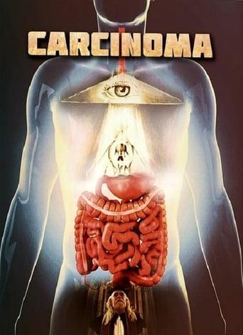 Watch Carcinoma Free Movie Online