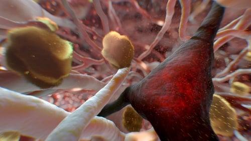 NOVA: Season 43 – Episode Can Alzheimer's Be Stopped?